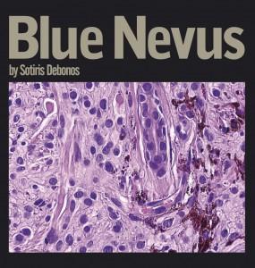 Sotiris Debonos  – Blue Nevus